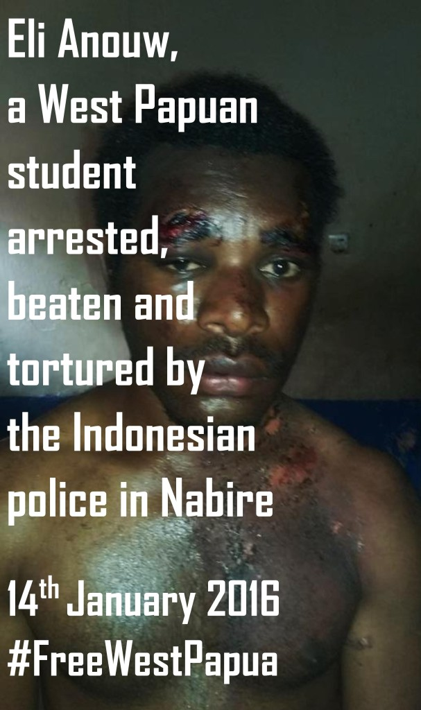 West Papuan youth tortured by Indonesian police in Nabire-page-001